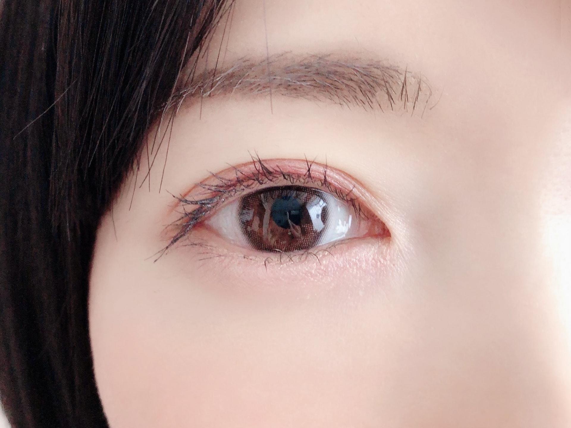 二重の種類と特徴|二重整形で好みの目元を作るポイント