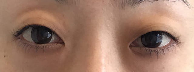 F様二重埋没+下眼瞼脱脂
