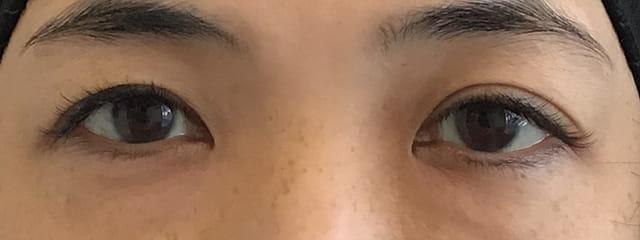 S様 下眼瞼脱脂